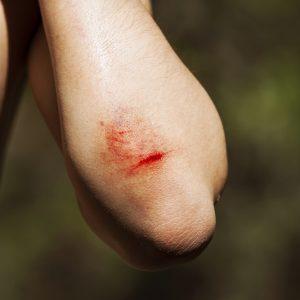 טיפול בחתכים בידיים