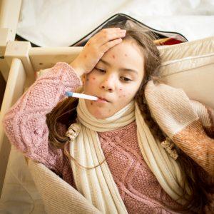 טיפול באבעבועות רוח
