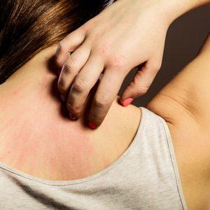 טיפול בגרד בעור
