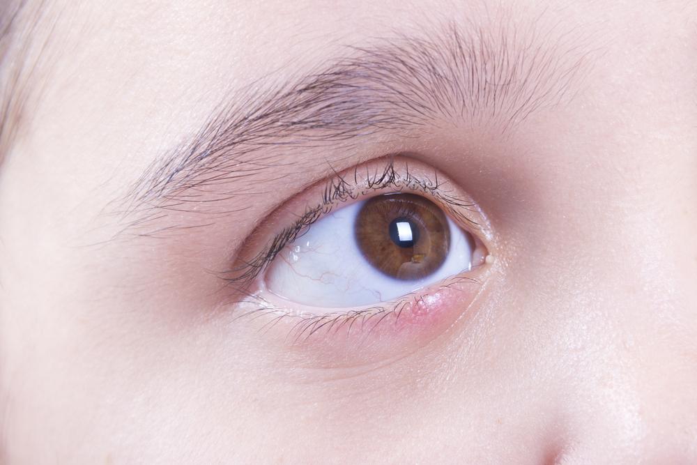 טיפול בשעורה בעין - אסתר קייר